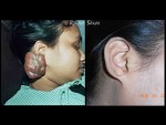 KELOID EAR EXCISION AND INTRLESIONAL INJ. TRIMACILONE AND 5-FU