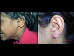 EARLOBE RECONSTRUCTION BY ONE STAGE PRE AND POST AURICULAR FLAP