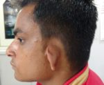 MICROTIA EAR