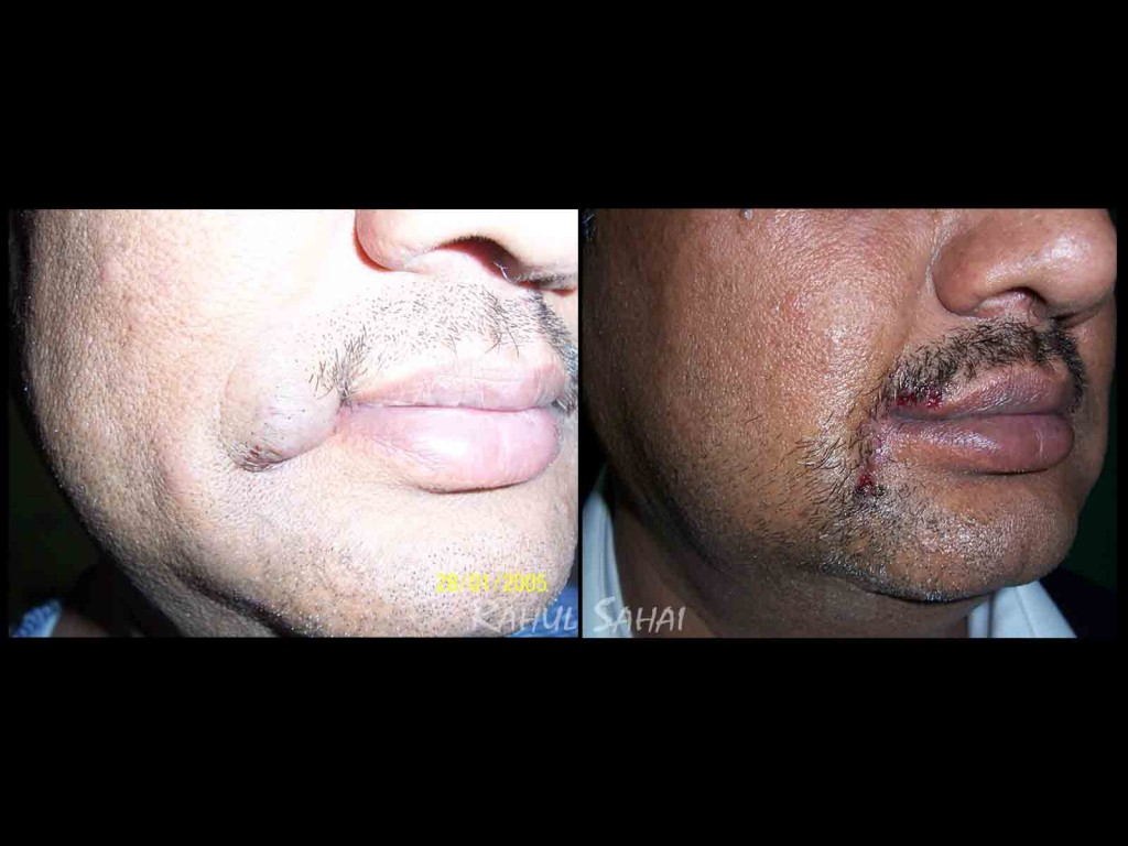 Haemangioma angle of mouth excision and localclosure