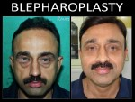UPPER AND LOWER EYELIDS BLEPHEROPLASTY UNDER L.A. ( 5-YR. FOLLOW UP )
